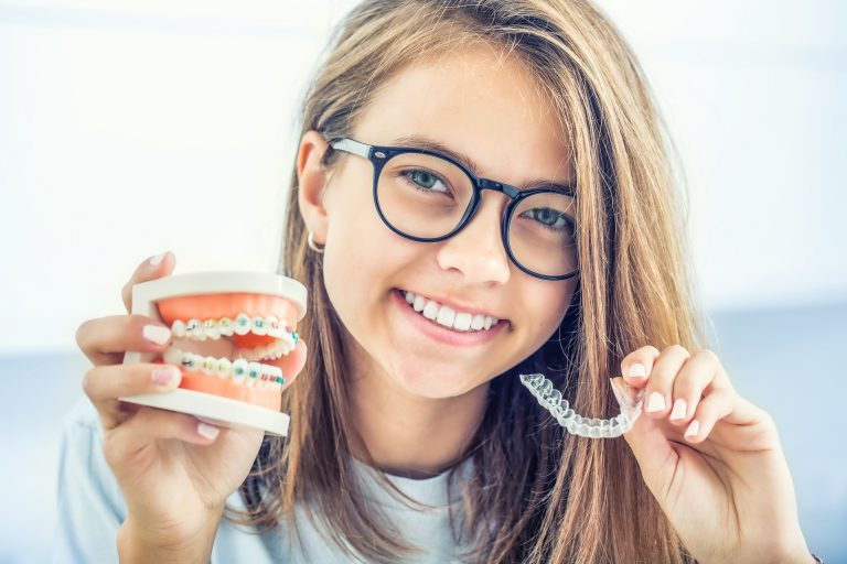 Dental Invisible Braces Or Silicone Trainer In The Hands Of A Young Smiling Girl. Orthodontic Concept Invisalign.